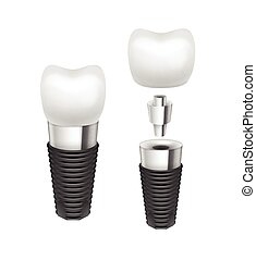 Vector tooth implant - Vector metal disassembled tooth...