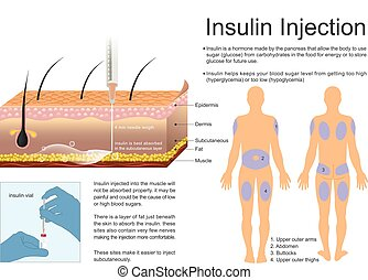 Insulin Injection - Insulin helps keeps your blood sugar...