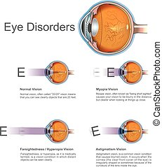 Eye disorders. Vector graphic. - They may not be painful and...