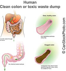 Man clogged colon, healthy colon.