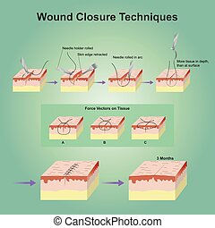 wound closure techniques - A wound is a type of injury which...