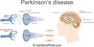 Parkinson's disease - Dopamine levels in a normal and a...