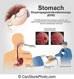 EGD Stomach - Esophagogastroduodenoscopy, also called by...