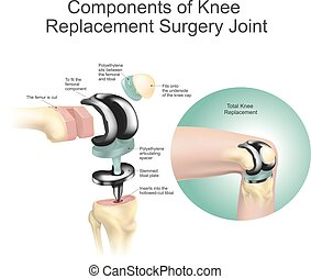 Components of knee replacement surgery joint