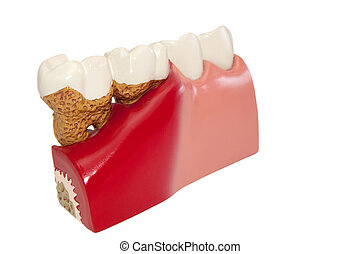Dental diseases. - Model of various dental diseases.