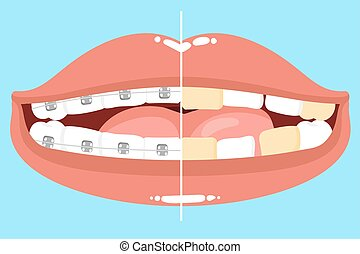 cute cartoon mouth with tooth wear braces before and after