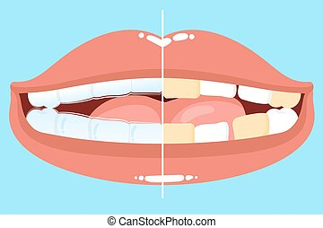 cute cartoon mouth with tooth wear invisible braces before...