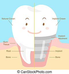 cute cartoon tooth - cute cartoon teeth with implant on blue...