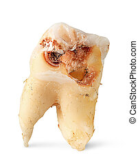 Closeup single tooth with caries vertically
