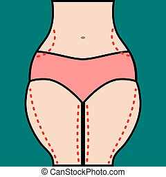 Liposuction of hips and thighs
