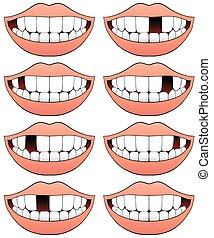 Missing Tooth Series - Series of mouths with a different...