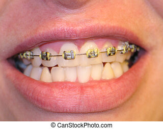 Mouth with braces - Mouth with bracket braces, no...