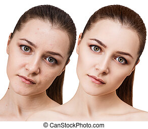 Young woman before and after retouch. - Comparison portrait...
