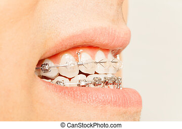 Profile view of braces for orthodontic treatment - Close-up...
