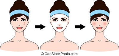 Step-by-step use of facial masks from acne.