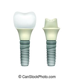 Plastic assembled tooth implant - Vector plastic assembled...