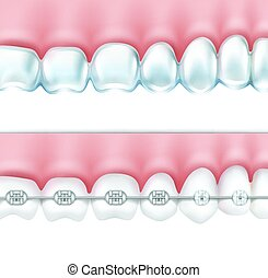 human teeth with braces set - Vector human teeth with metal...