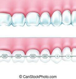 human teeth with braces set - Vector human teeth with metal...