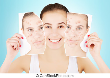 girl celebrating her healthy skin, blue gradient background...