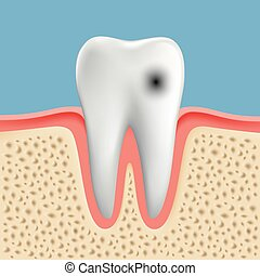 Vector image of a human tooth with caries