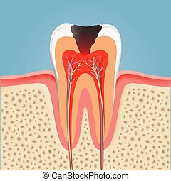 Human tooth with caries. Stock vector illustration.