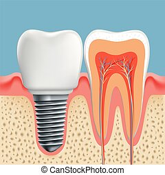 Human tooth in cross-section and dental implant. Stock...