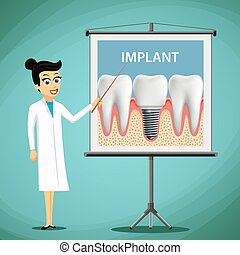 Woman dentist showing a poster with tooth implant. Dental...