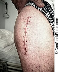 Scar following surgery of hip joint. Replacing of the...