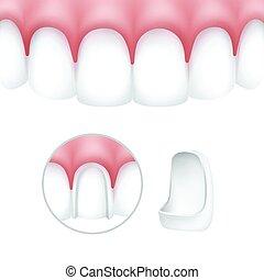 Dental veneers on human teeth - Vector dental veneers on...
