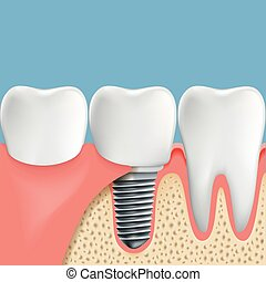 Human teeth and Dental implant. Anatomy of the oral cavity. Stoc