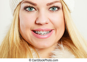 smiling girl with dental braces closeup
