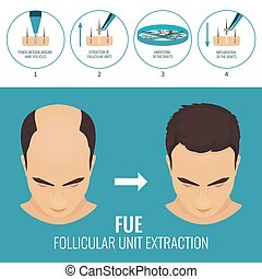 FUE hair loss treatment - Male hair loss treatment with...
