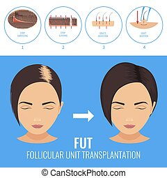 FUT treatment for women - Female hair loss treatment with...