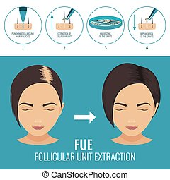 FUE treatment for women - Female hair loss treatment with...