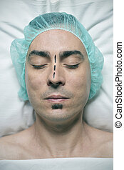 man about to have a rhinoplasty