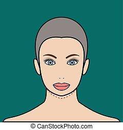 Chin augmentation - Plastic surgery chin augmentation....