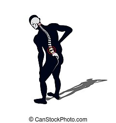 Medical Concept Illustration of Musculotendinous Strain Back...