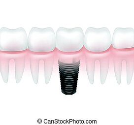 Metal tooth implant - Vector metal dental implant between...