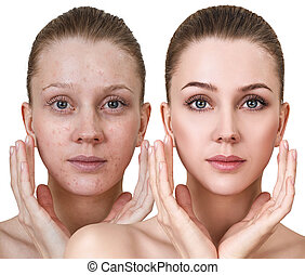 Woman before and after treatment and makeup. - Portrait of...