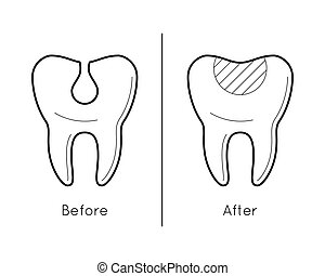 Tooth before and after caries - Icons of tooth before and...