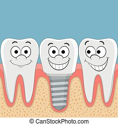 Human teeth and dental implant. Stock vector cartoon...