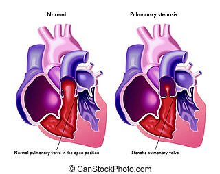 pulmonary stenosis - medical illustration of the symptoms of...