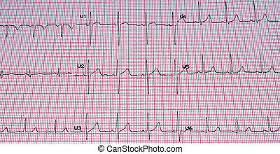 Electrocardiogram. - Heart analysis, ECG graph.