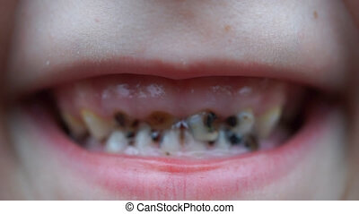 footage caries on the teeth of the child close up. HD video
