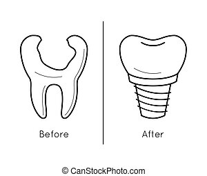 Icons of tooth dental implant - Icons of tooth and dental...