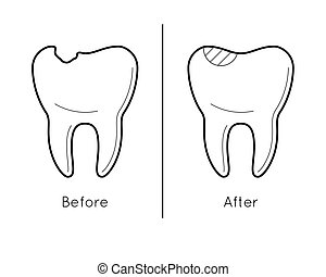 Tooth before and after caries