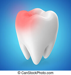 Toothache concept, caries concept isolated on blue tints. 3D rendering