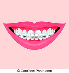 Smile with Braces - Closeup Human Lips Smile with Metal...
