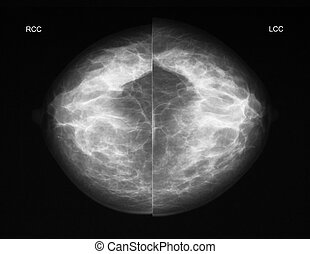 Mammography in CC projection - Left-right comparison of a...