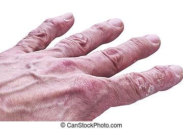 piel, enfermedad,  Psoriasis